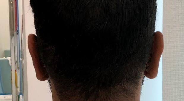 Poliklinika Mirabiliss, Niš - Plastična hirurgija - Operacija ušiju - Posle 01