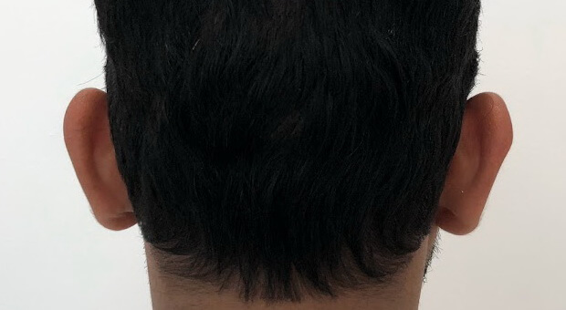 Poliklinika Mirabiliss, Niš - Plastična hirurgija - Operacija ušiju - Pre 01