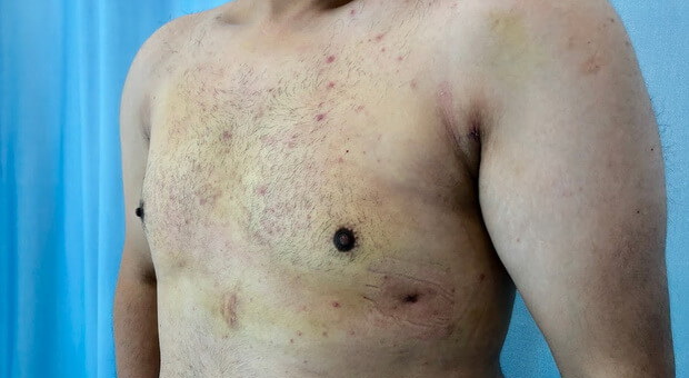 Poliklinika Mirabiliss, Niš - Plastična hirurgija - Smanjenje grudi kod muškaraca - Posle 02
