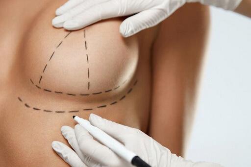 Mirabiliss Polyclinic - Nis - Breast augmentation 02