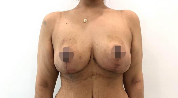 Poliklinika Mirabiliss, Niš - Plastična hirurgija - Smanjenje grudi - Posle 02