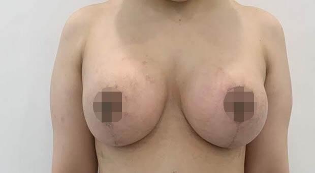 Poliklinika Mirabiliss, Niš - Plastična hirurgija - Smanjenje grudi kod muškaraca - Posle 01