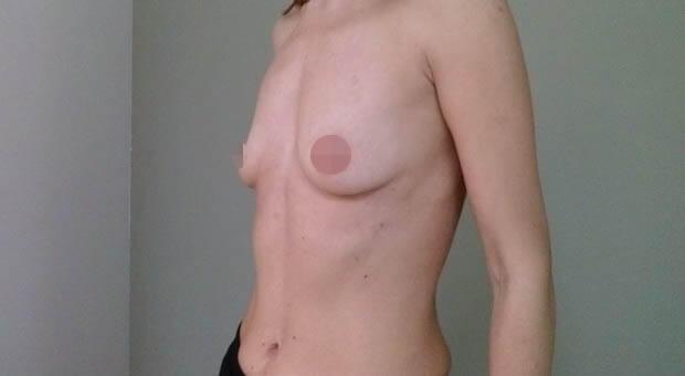 Poliklinika Mirabiliss, Niš - Plastična hirurgija - Povećanje grudi - Pre 01