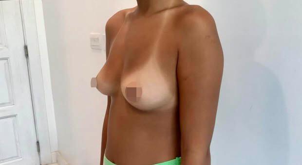 Poliklinika Mirabiliss, Niš - Plastična hirurgija - Povećanje grudi - Pre 02