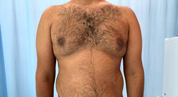 Poliklinika Mirabiliss, Niš - Plastična hirurgija - Smanjenje grudi kod muškaraca - Pre 01