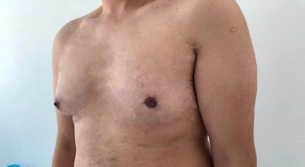 Poliklinika Mirabiliss, Niš - Plastična hirurgija - Smanjenje grudi kod muškaraca - Pre 02