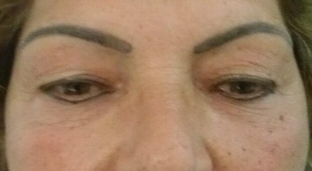Poliklinika Mirabiliss, Niš - Plastična hirurgija - Korekcija kapaka - Pre 02