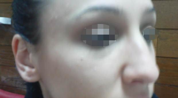 Poliklinika Mirabiliss, Niš - Plastična hirurgija - Korekcija nosa - Pre 01