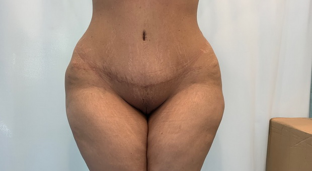 Poliklinika Mirabiliss, Niš - Plastična hirurgija - Dermolipektomija - Posle 01